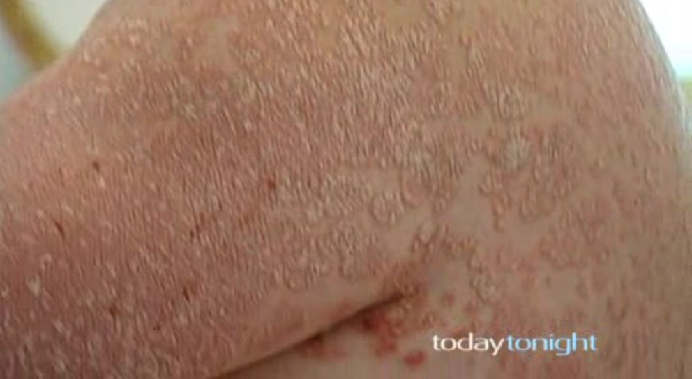 John's dermatologist put him on to a new drug in the fight against psoriasis called Remicade 3